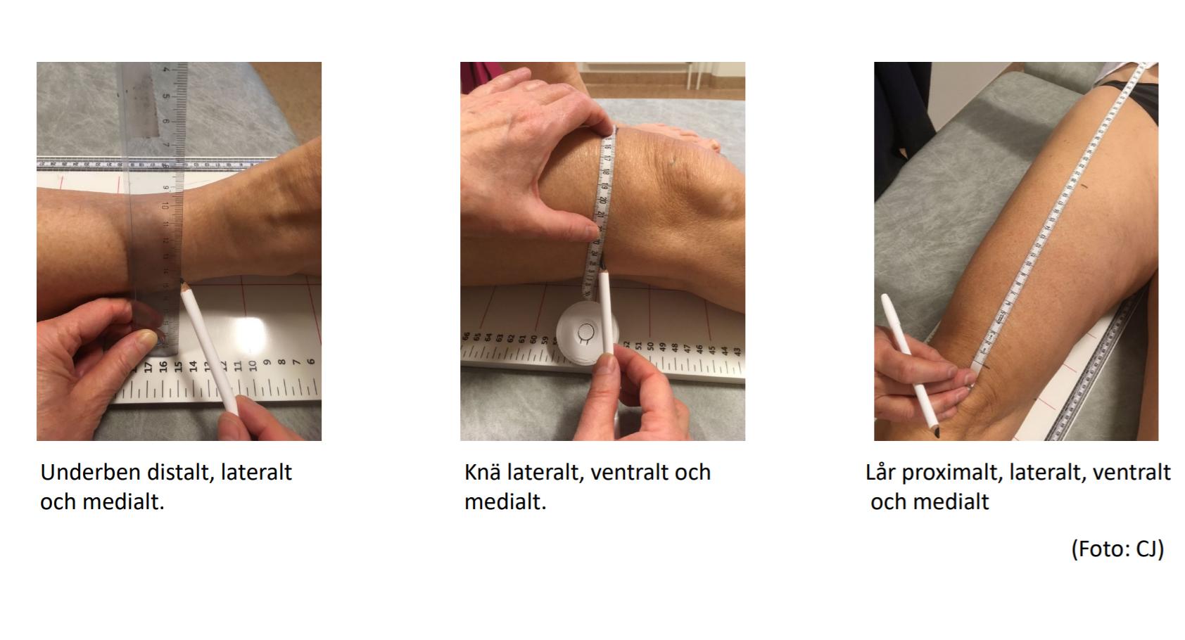 Bild för Tidig diagnostik och uppföljning av lymfödem